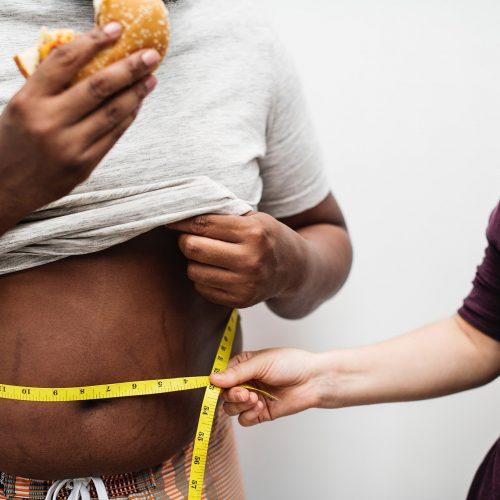 Introducción a las cirugías para la obesidad